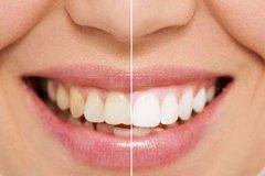 洗牙可以美白牙齿吗