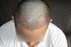 <b>植发的效果能保持多长时间?</b>