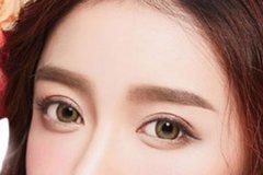 双眼皮术手术后多长时间能恢复