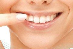 怎么矫正虎牙比较好呢