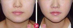 瘦脸手术中的瘦脸针可以打吗?会不会有什么副作