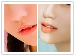鼻翼缩小手术安全不安全