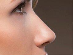 Finesse鼻整形术精致美鼻