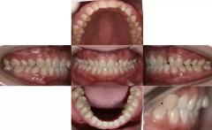 牙齿上出现了小黑点或小黑洞怎么办?需不需要