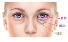 祛眼袋术后护理要怎么做