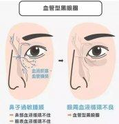 整形美容专家介绍黑眼圈3种类型,医美疗程改善