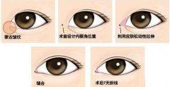 开眼角手术有什么好处?