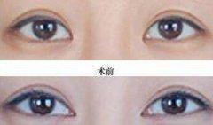做双眼皮手术时哪些人需要做开眼角?
