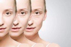祛眼角纹的方法有哪些