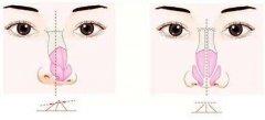 鼻头缩小术要多久后才能拆线,需要注意什么?