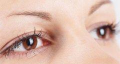 哪些情况需要进行双眼皮修复手术