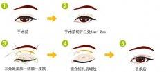 韩式三点双眼皮有什么特色呢