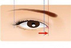 开眼角手术失败修复要考虑哪几点