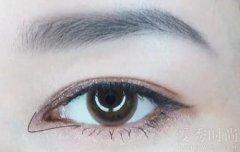 开眼角整形后会不会留下疤痕