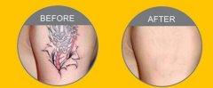 洗纹身都有哪些办法呢