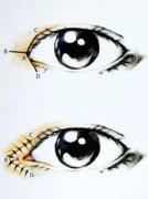 开眼角手术后疤痕多久会消失呢
