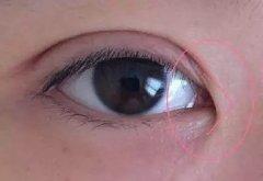 开眼角手术后如何快速消肿呢