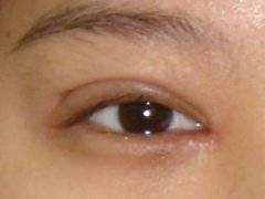 关于双眼皮手术后的修复方法
