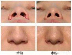 鼻孔缩小术适合哪些人