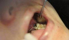 拔智齿的方法有哪些