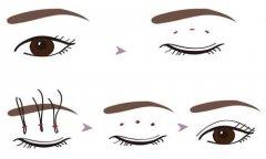 埋线双眼皮手术之后双眼皮消失了该怎么修复?