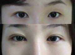 双眼皮的修复需要多久