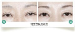 双眼皮修复手术的价格大概是多少钱