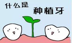 年轻人做种植牙修复的效果如何呢