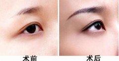 眉毛种植的原理是什么