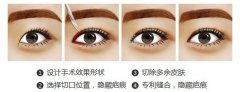 眼角手术有危险吗