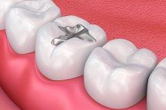 补牙手术后注意事项有哪些