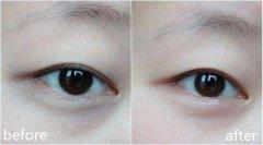 激光去黑眼圈的术后护理都有哪些