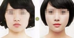 颧骨磨削后能够改变脸型吗