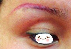 纹眉后的恢复需要多长时间