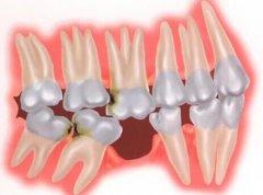长期缺牙有什么危险?植牙的好地方是哪里?