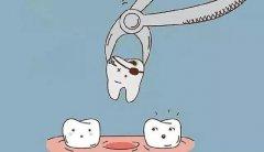 在什么情况下不能拔掉牙齿?