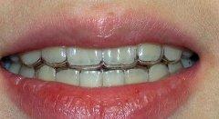 成年人矫正牙齿需要注意哪些问题