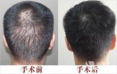 种植头发后该怎么护理