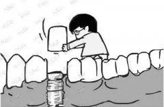 种植牙术后该如何保养
