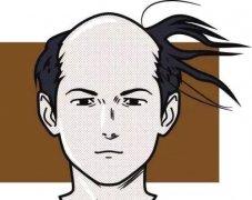 影响种植头发的价格因素有哪些