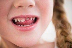 牙齿畸形原因有哪些?什么样的牙齿畸形需要纠正?