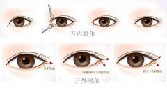 双眼皮手术是一定要开眼角的吗