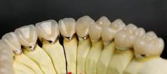 烤瓷牙的三大优势是什么