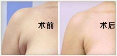 副乳切除术后该如何护理呢