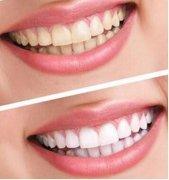 美白牙齿的妙招有哪些