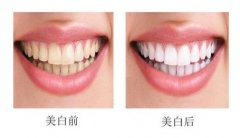 美白牙齿的价格高不高?