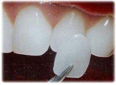 美容冠可以矫正龅牙吗
