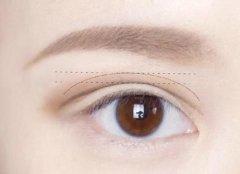 双眼皮的伤痕能去掉吗?