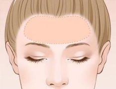 隆额头会有并发症吗?
