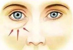 去眼袋会有什么后遗症吗?